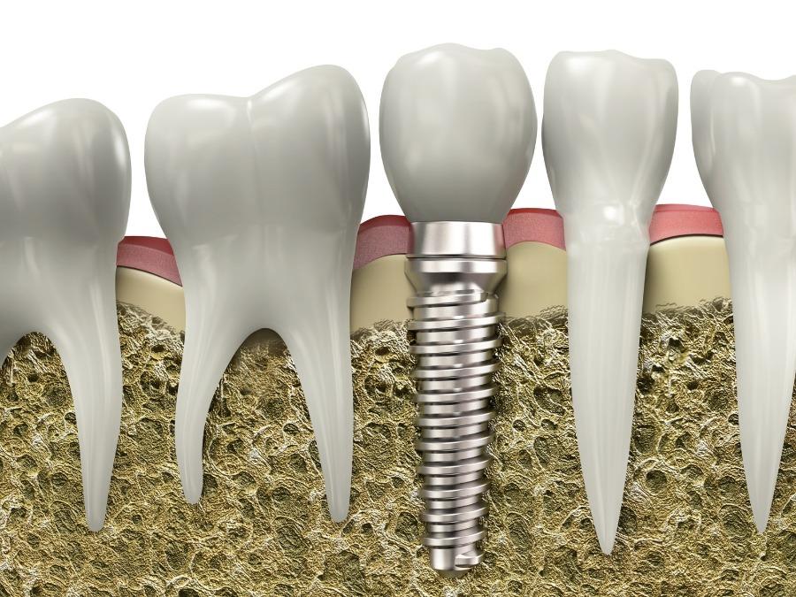Six Reasons That Dental Implants Set the Gold Standard