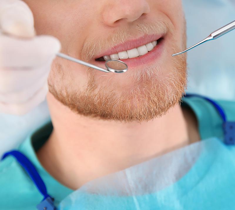 dental bonding in kelowna
