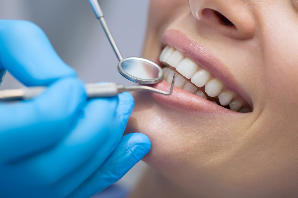 dental cleanings and check-ups in kelowna
