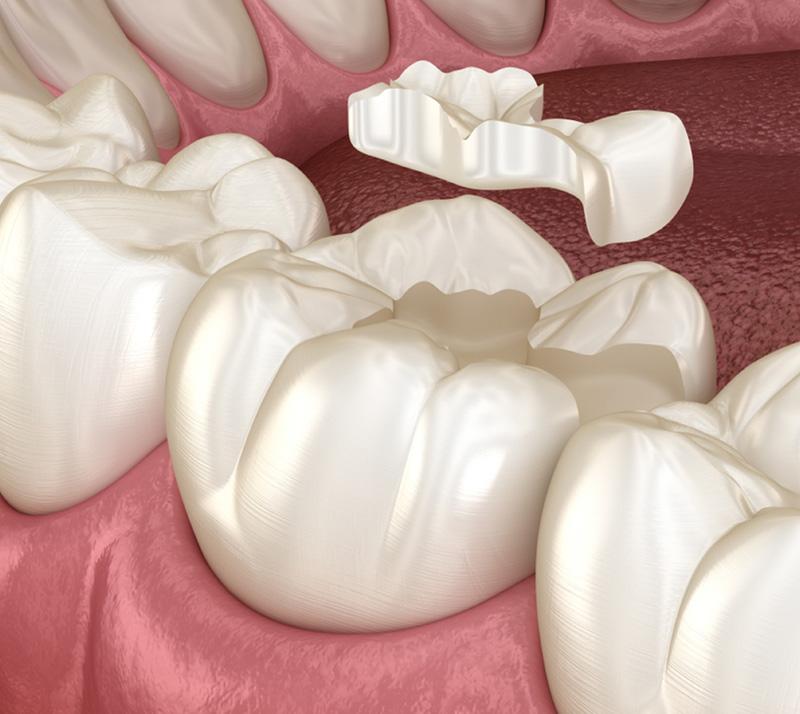 dental fillings near you
