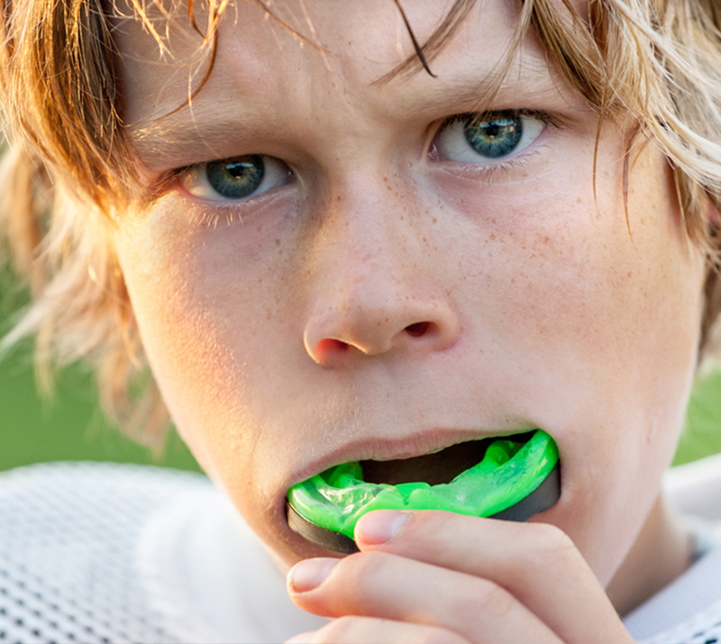 sports mouth guards in kelowna