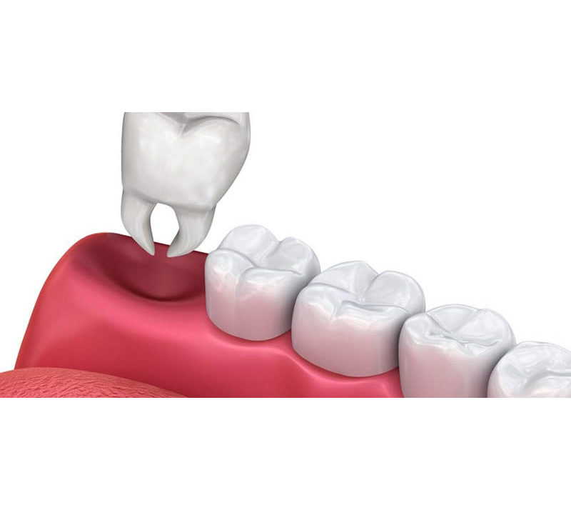 tooth extractions in kelowna