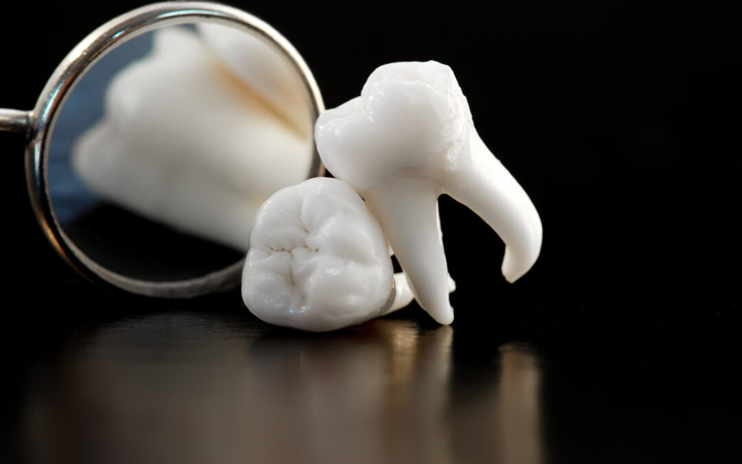 Commonly Asked Questions About CEREC Dental Crowns